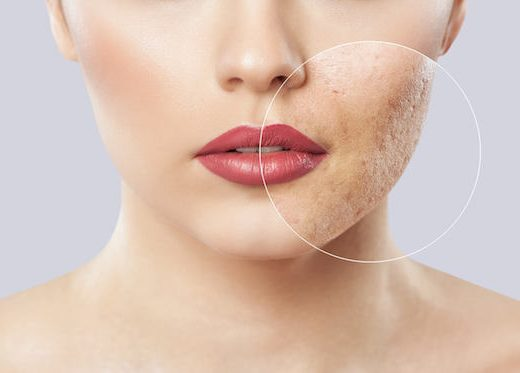 Best Acne Treatment Singapore