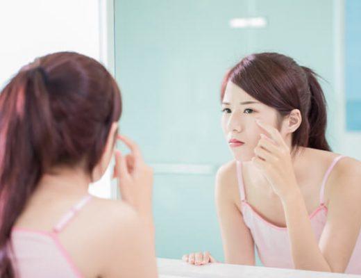Best Acne Scar Singapore