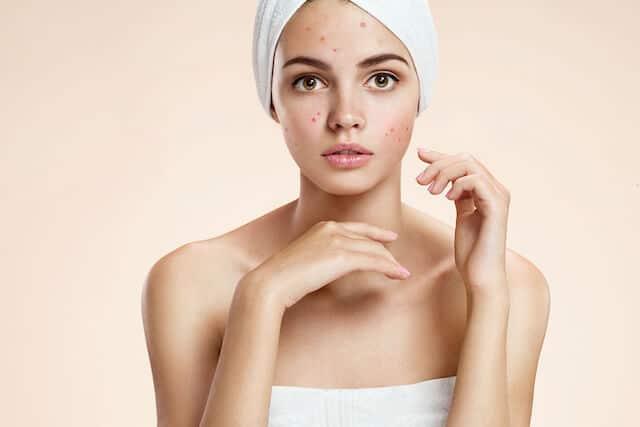 Best Acne Spot Treatment Singapore