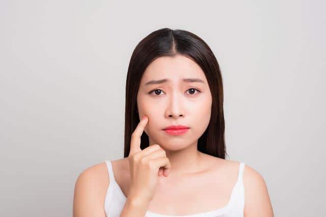 Best Acne Facial Singapore
