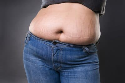 Best Stretch Mark Removal Singapore