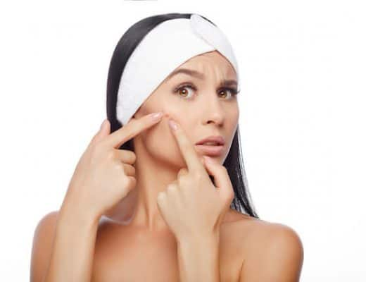 Top Subscision Acne Scars Singapore