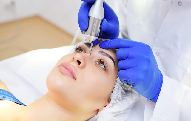 Best Laser Acne Removal Singapore