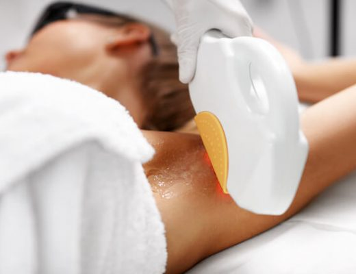 Best SHR Laser Hair Removal Singapore