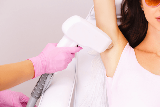 Best Underarm Laser Hair Removal Singapore